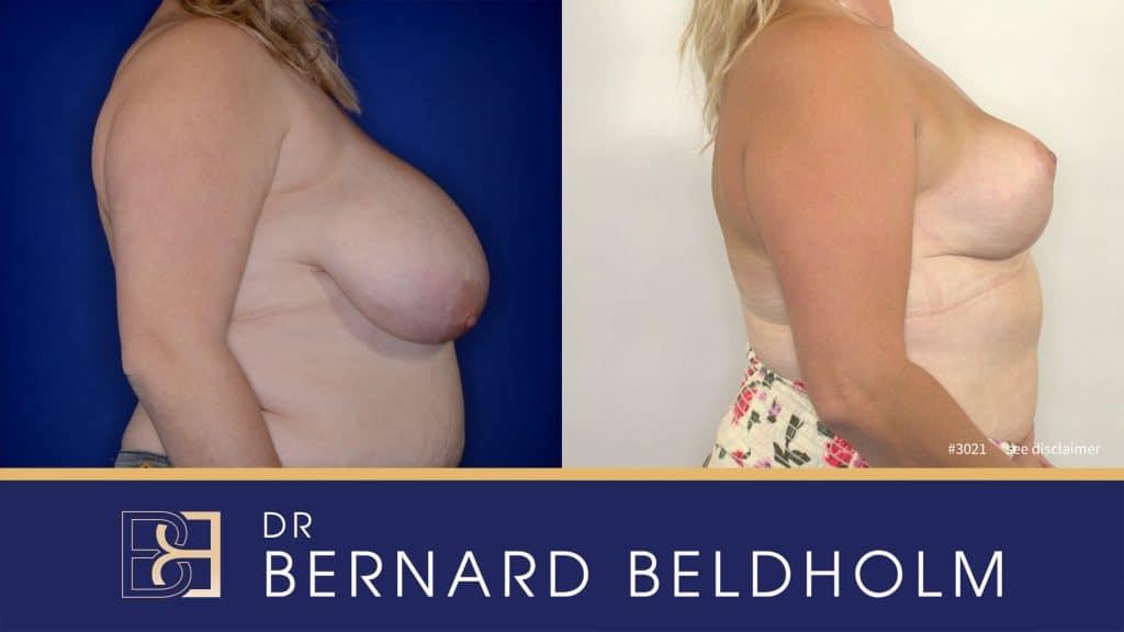Patient 3021 Breast Augmentation