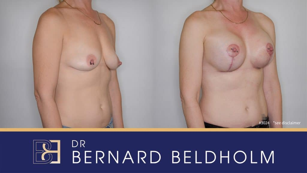 Patient 3024 Breast Augmentation