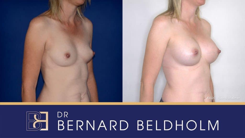 Patient 3026 Breast Augmentation