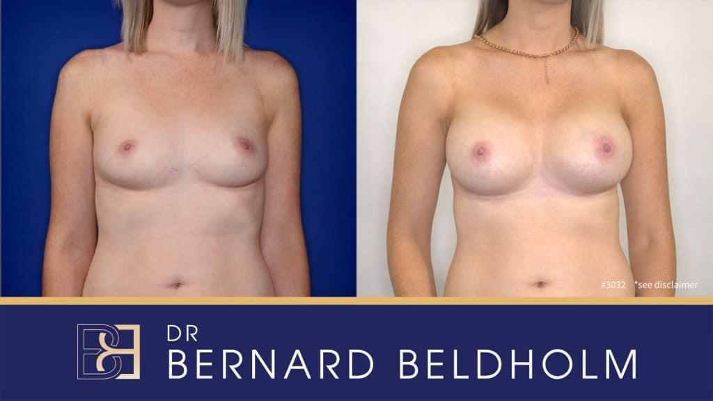 Patient 3032 Breast Augmentation