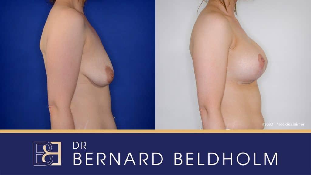 Patient 3033 Breast Augmentation