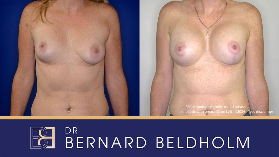 Patient 3034 Breast Augmentation