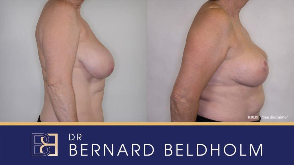 Patient 3039 Breast Augmentation