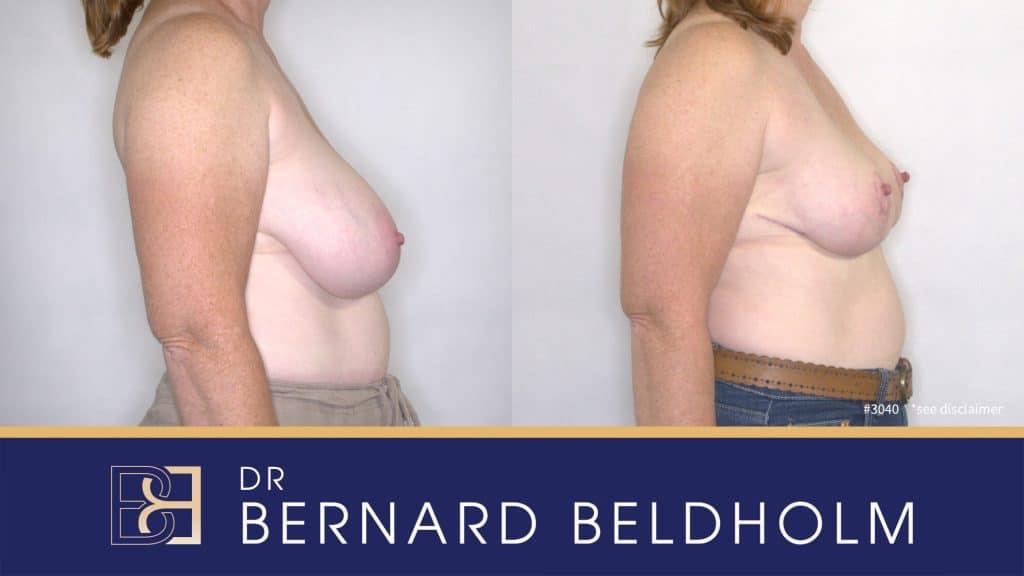 Patient 3040 Breast Augmentation
