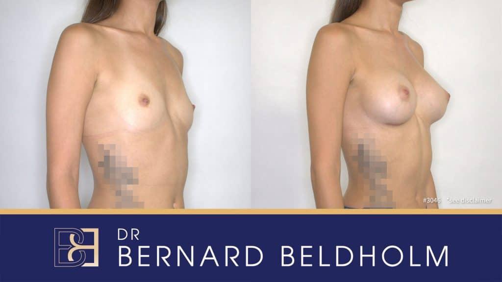 Patient 3046 Breast Augmentation