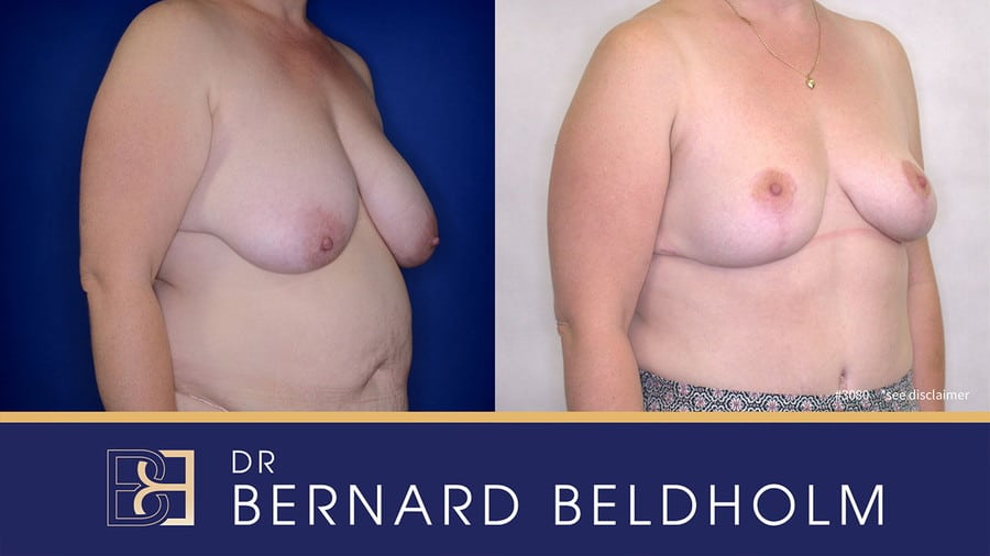 Patient 3080 Breast Augmentation