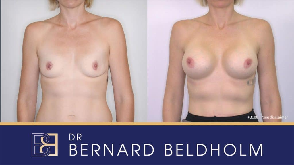 Patient 3106 Breast Augmentation