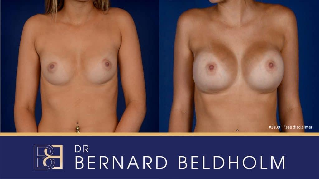 Patient 3109 Breast Augmentation