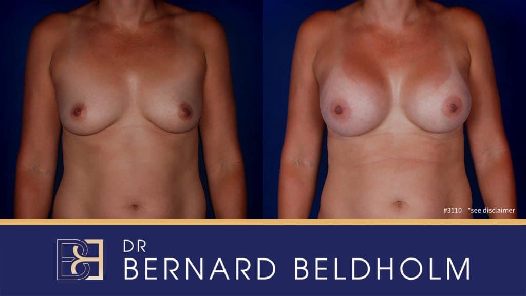 Patient 3110 Breast Augmentation