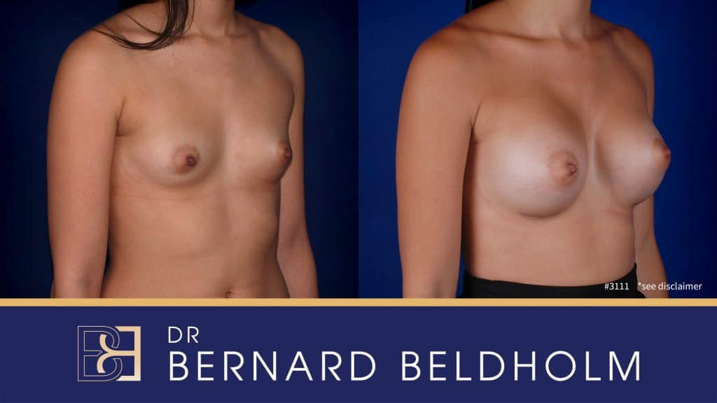 Patient 3111 Breast Augmentation