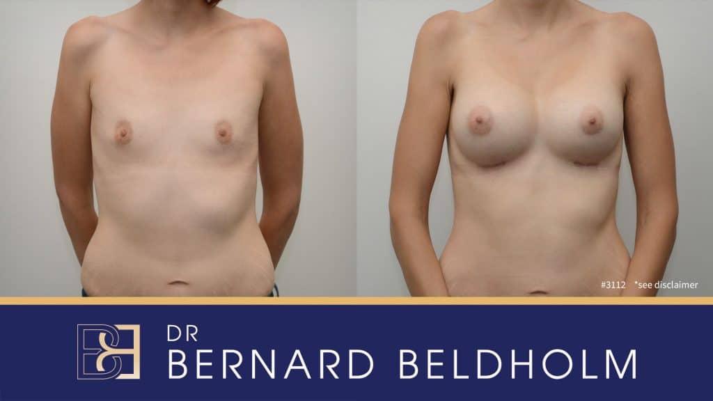 Patient 3112 Breast Augmentation