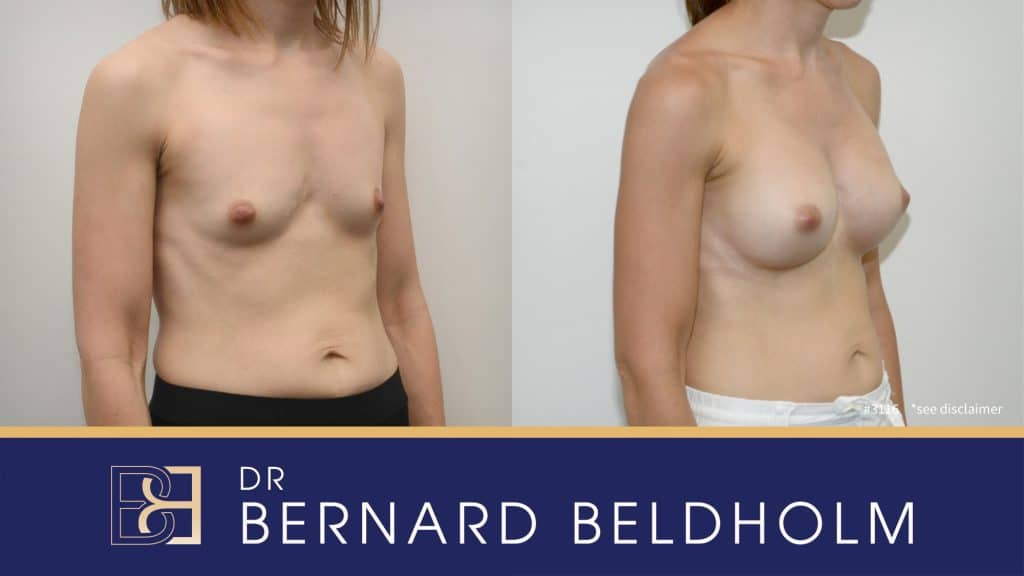 Patient 3116 Breast Augmentation