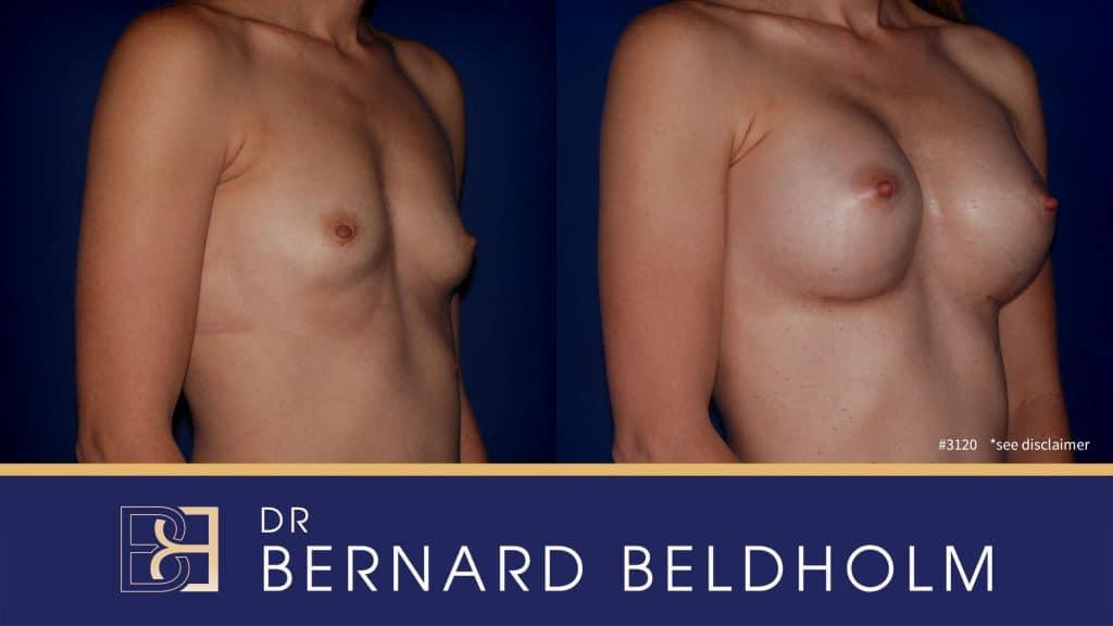 Patient 3120 Breast Augmentation
