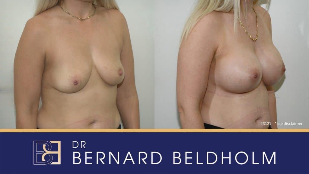 Patient 3121 Breast Augmentation