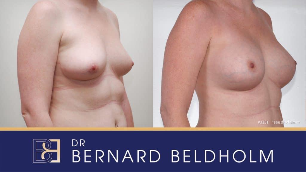 Patient 3131 Breast Augmentation