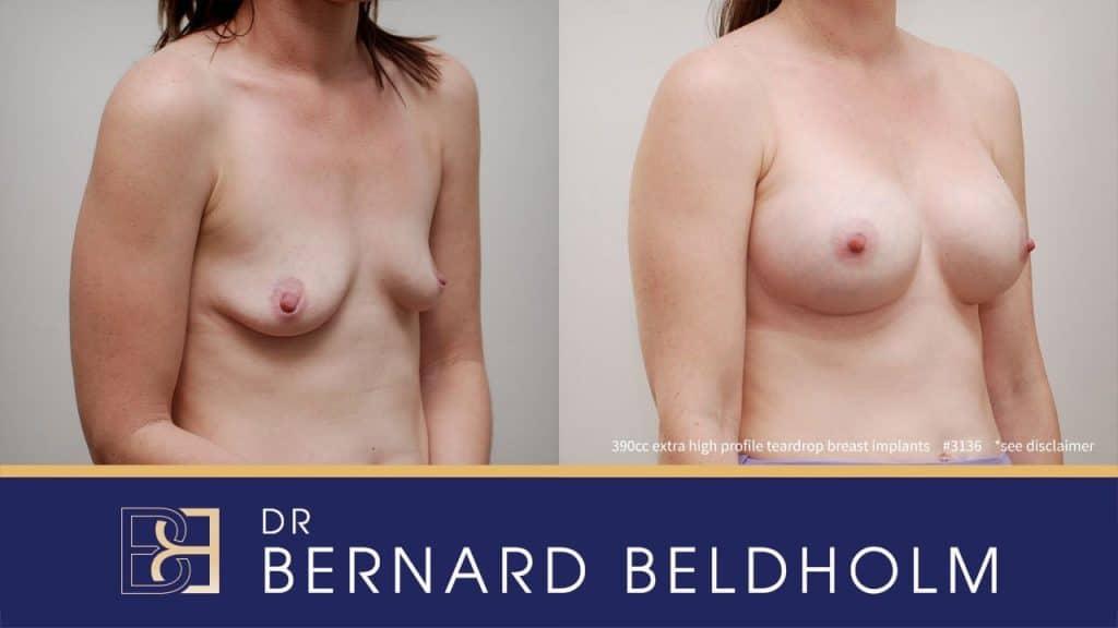 Patient 3136 Breast Augmentation