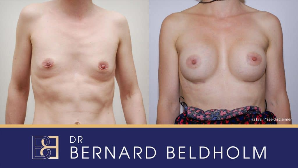 Patient 3138 Breast Augmentation