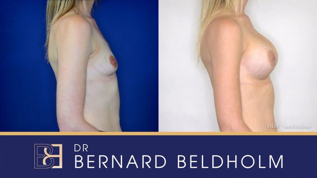Patient 3143 Breast Augmentation