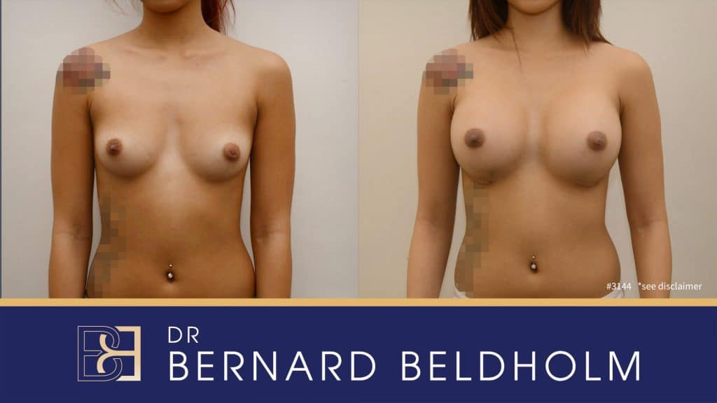 Patient 3144 Breast Augmentation