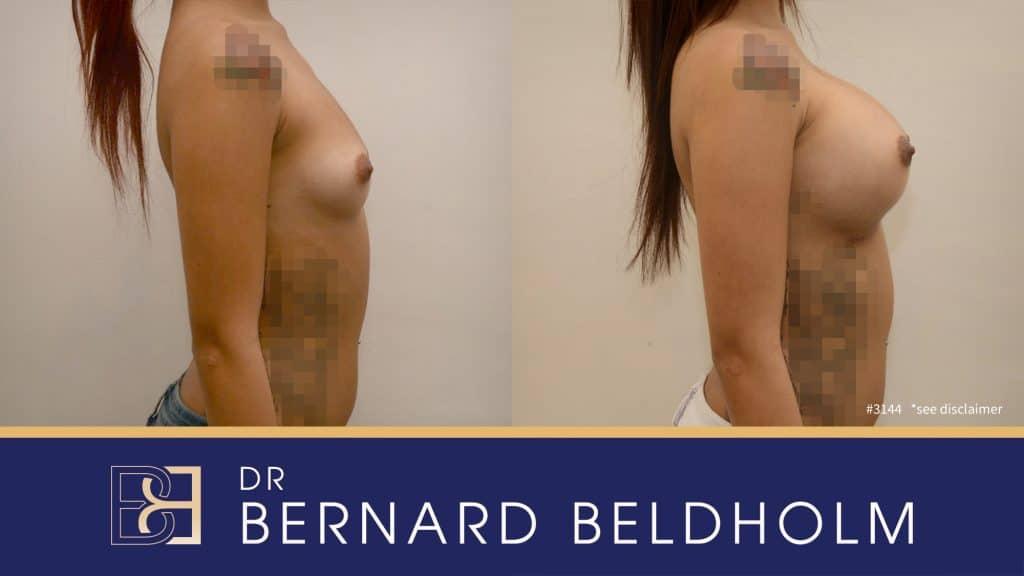 Patient 3144 Breast Augmentation