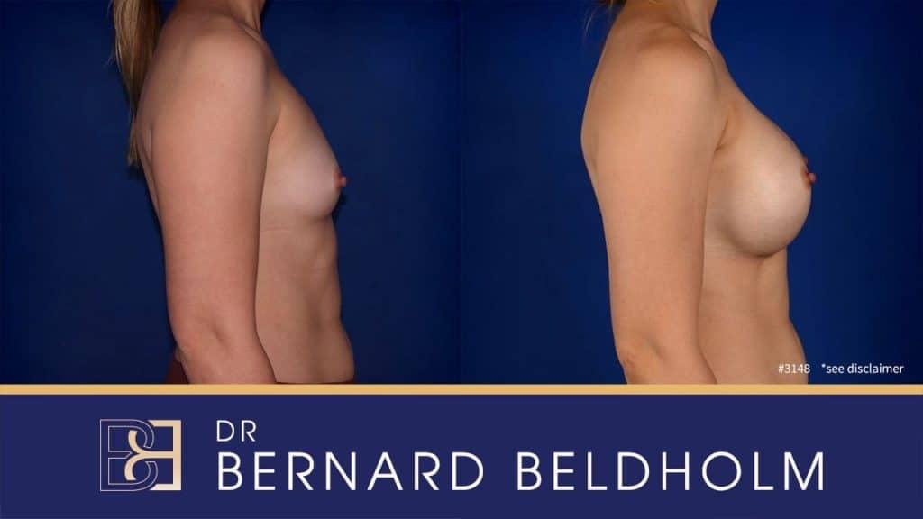 Patient 3148 Breast Augmentation