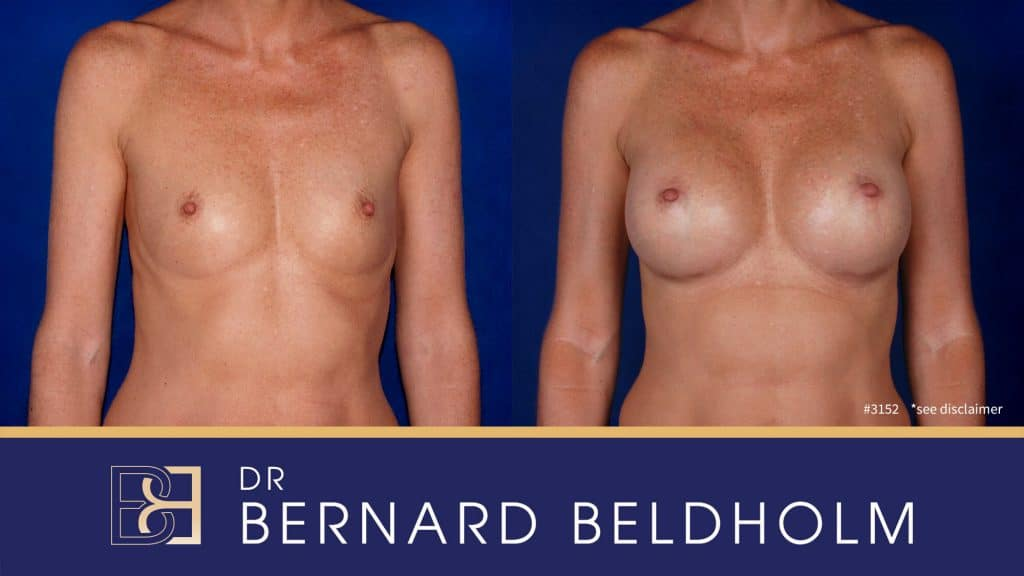 Patient 3152 Breast Augmentation