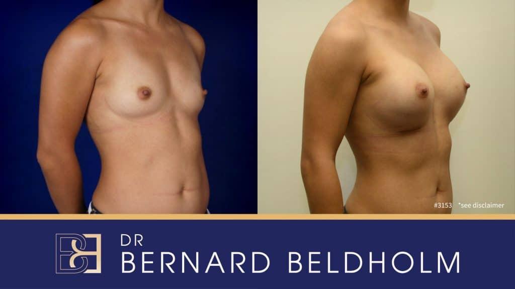 Patient 3153 Breast Augmentation