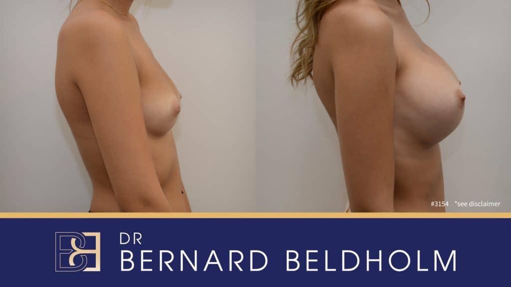Patient 3154 Breast Augmentation