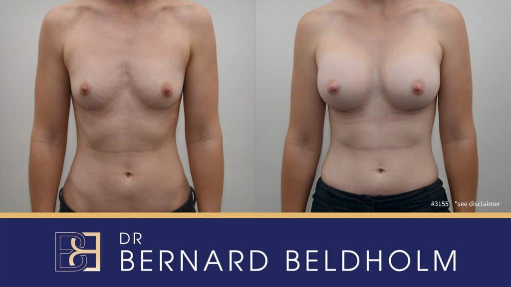 Patient 3155 Breast Augmentation