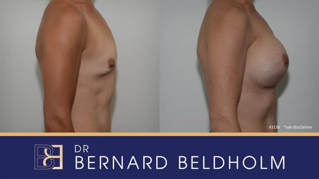 Patient 3156 Breast Augmentation