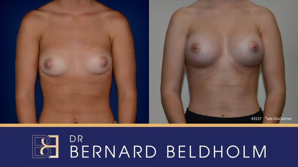 Patient 3157 Breast Augmentation