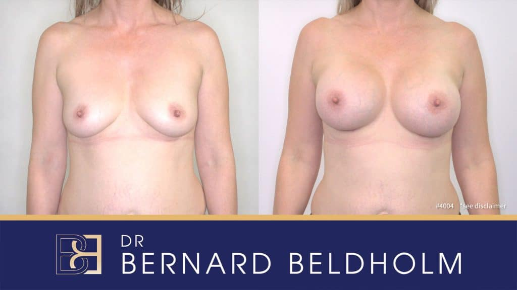 Patient 4004 Breast Augmentation