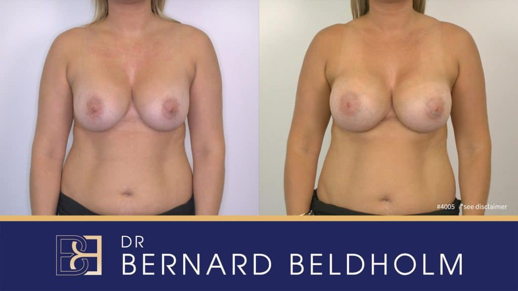 Patient 4005 Breast Augmentation