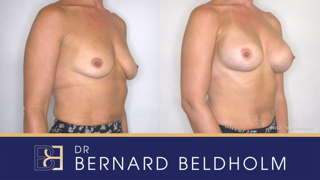 Patient 4012 Breast Augmentation