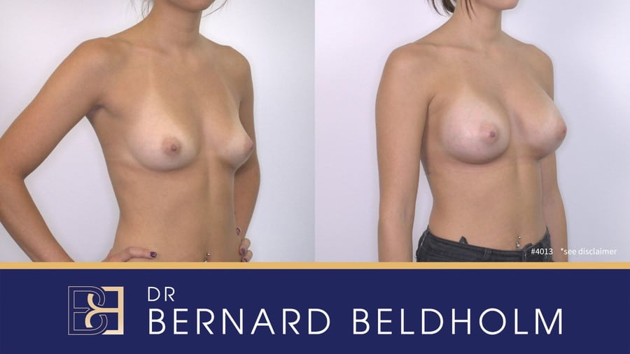 Patient 4013 Breast Augmentation