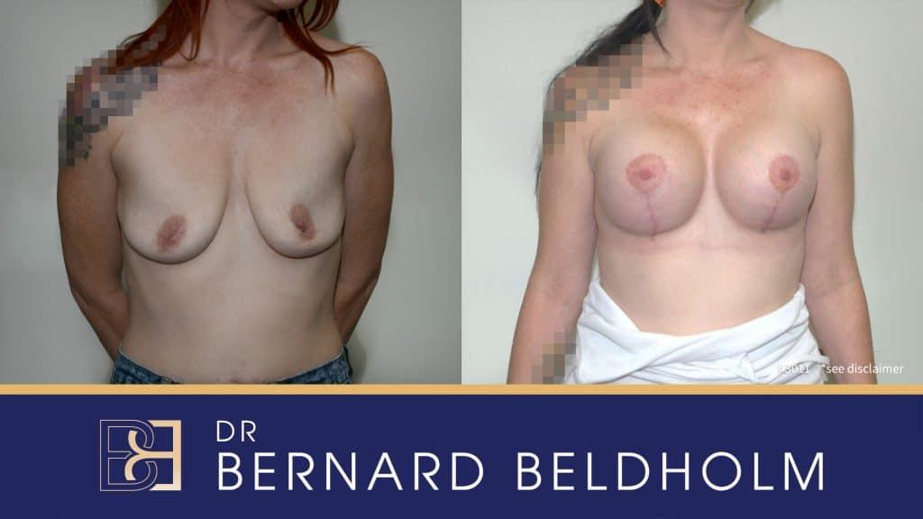 Patient 3011 Breast Augmentation