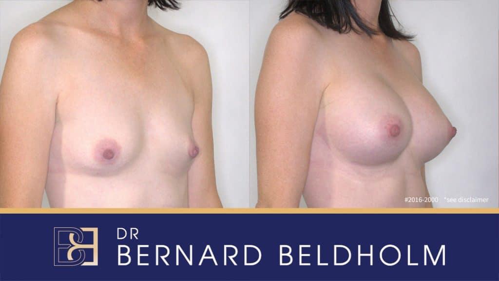 Patient 2016-2000 Tear Drop Breast Implants