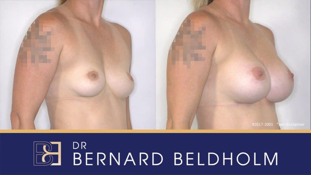 Patient 2017-2001 Tear Drop Breast Implants