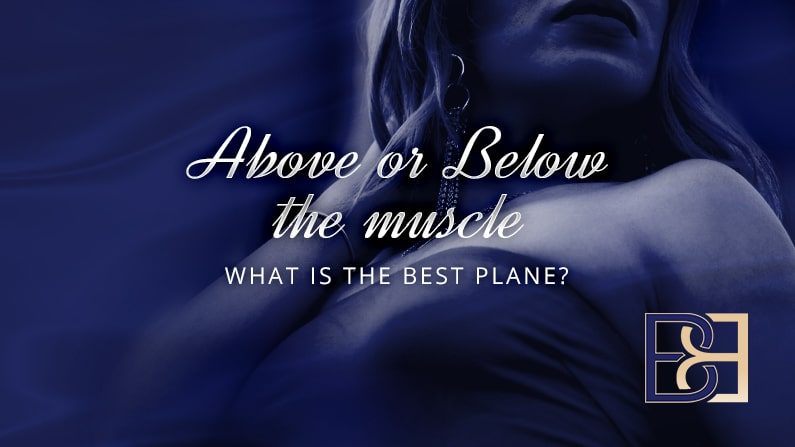 Above or below the muscle what is the best plane