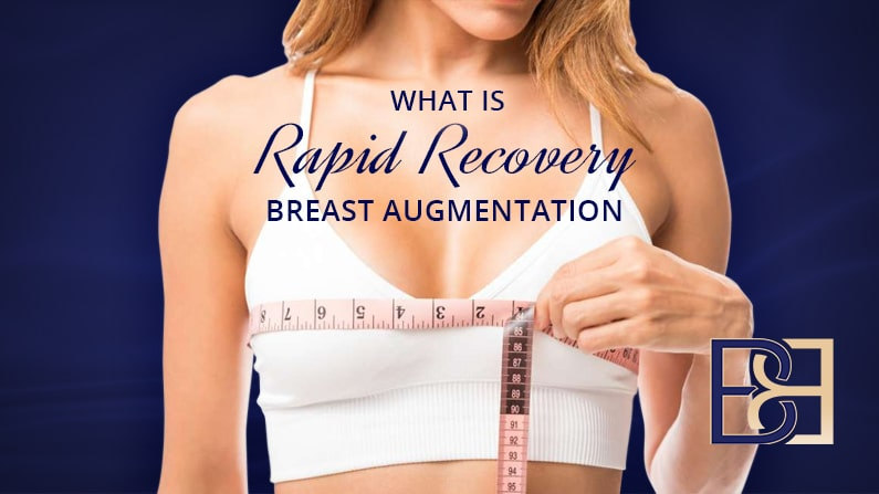 10 Incredible Benefits of Rapid Recovery Breast Augmentation