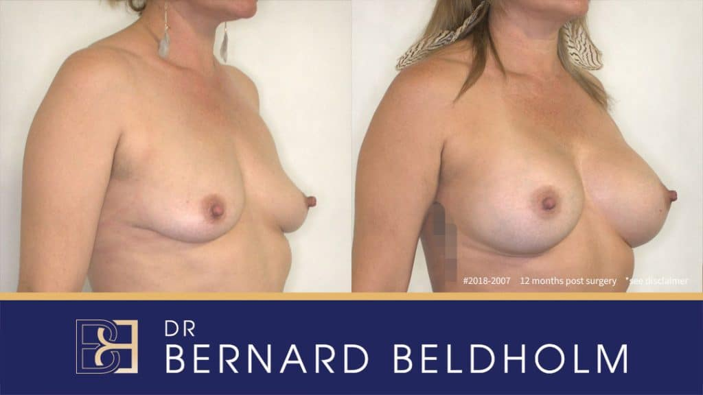 Breast Augmentation Patient 2018-2007