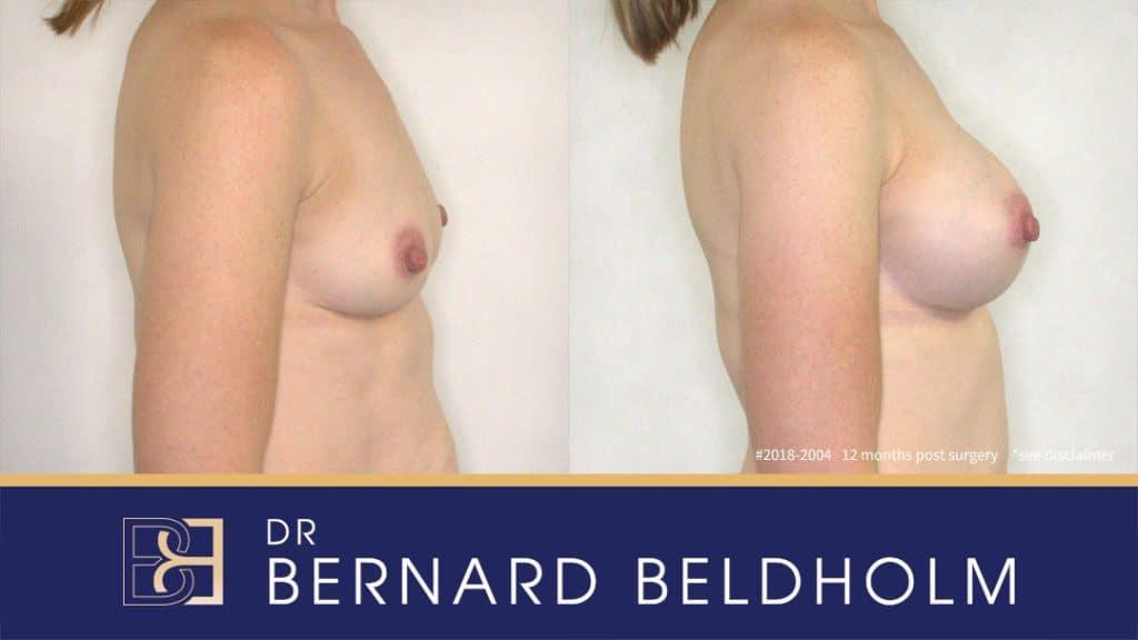 2018-2004 Breast Augmentation