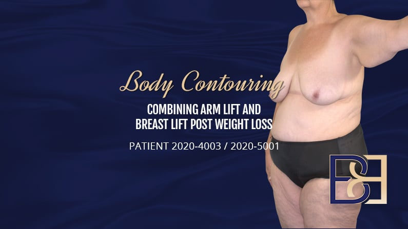Patient 2020-4003 & 2020-5001 Combining Arm Lift and Breast Lift - Body Contouring