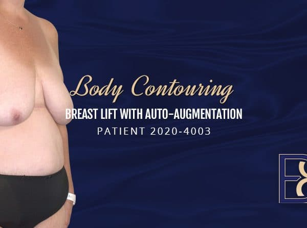 Patient 2020-4003 Breast Lift with Auto Augmentation