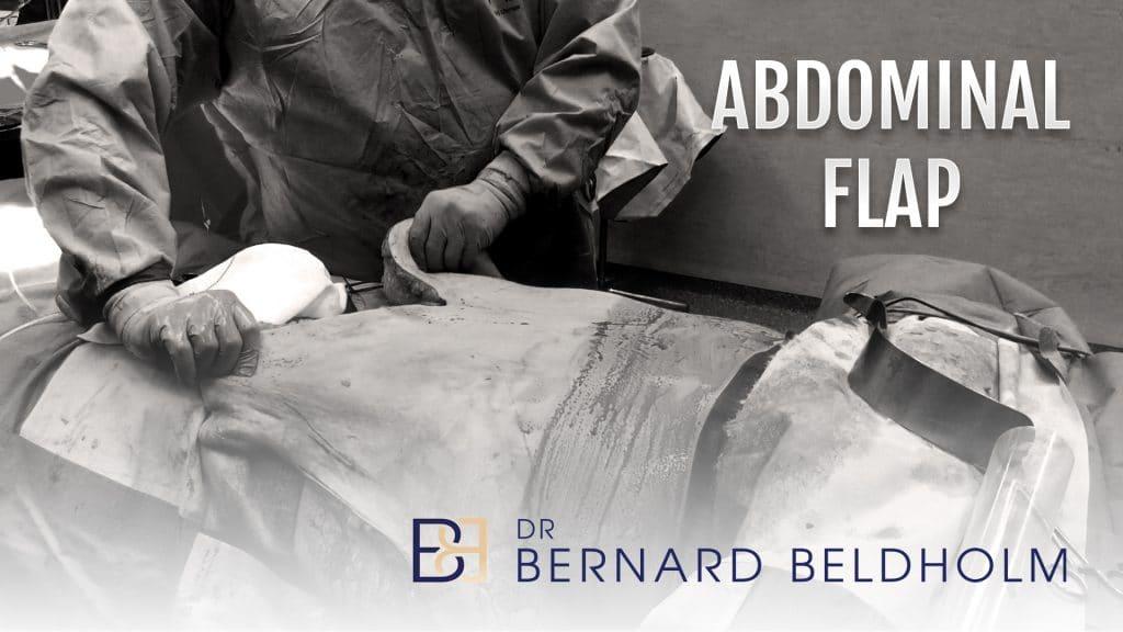 Abdominal Flap