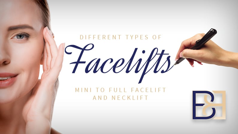 Different Type if Facelift