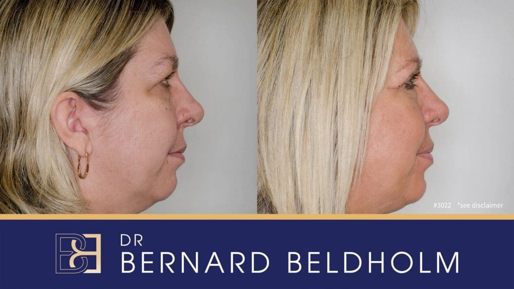 Patient 3022 Blepharoplasty