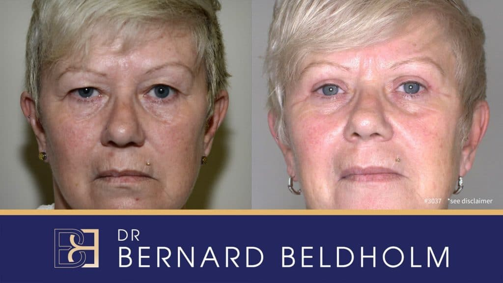 Patient 3037 Blepharoplasty