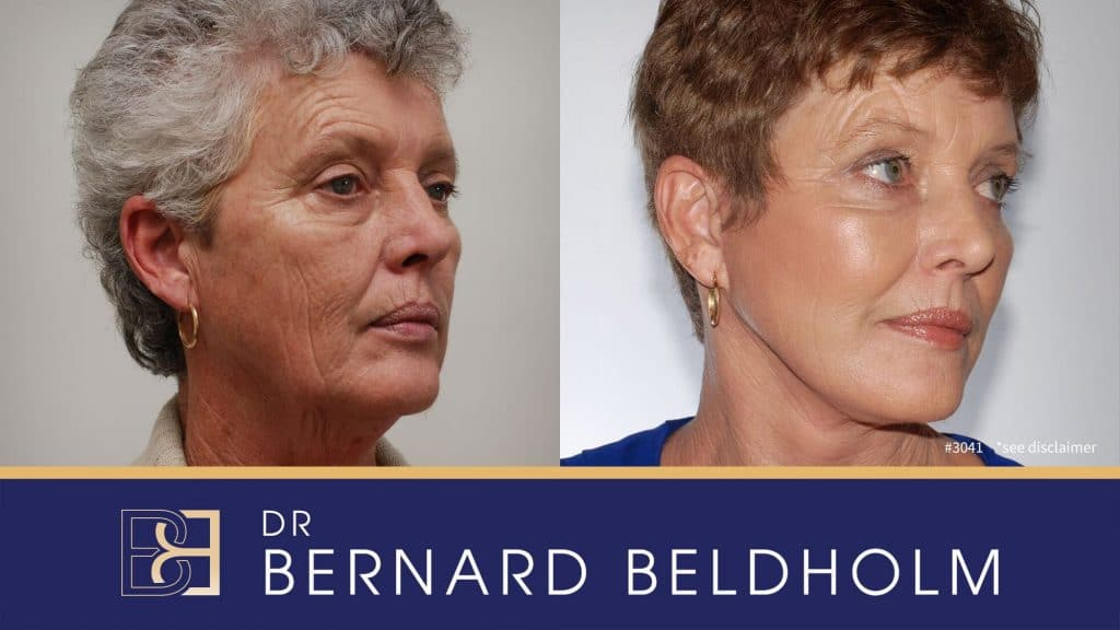 Patient 3041 Facelift and Neck Lift