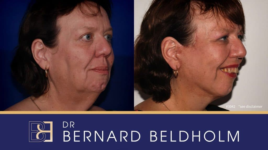 Patient 3042 Facelift and Neck Lift